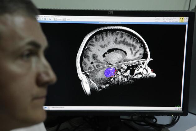 روسيا...علماء يبتكرون حاملا اصطناعيا للعقل البشري الطبيعي