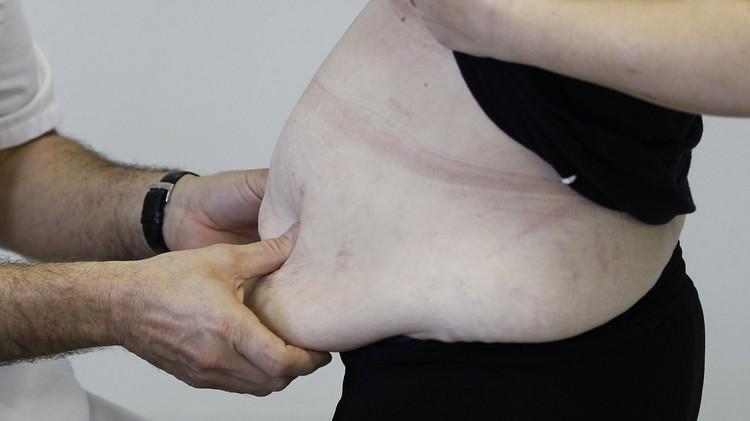 علماء روس.. دواء فعال جدا ضد السمنة قريبا