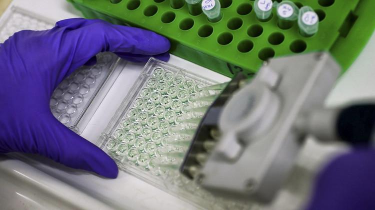 علماء أمريكيون يعتمدون علاجا واعدا للإيدز