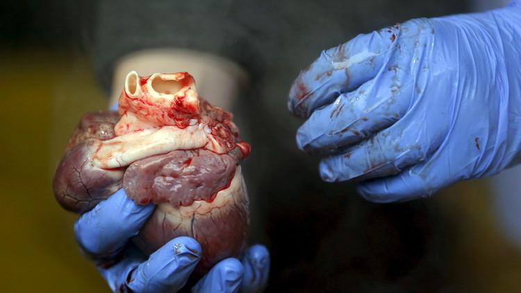 دراسة: الموت بسبب انكسار القلب ممكن!