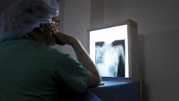 السرطان السبب الرئيسي للوفيات في 12 دولة