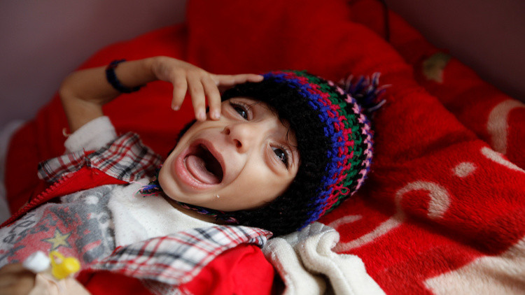 تسجيل إصابات بوباء الكوليرا في اليمن