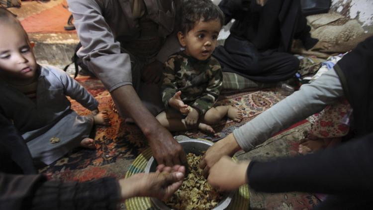 السعودية تتبرع بـ10 ملايين$ للتصدي لسوء التغذية في اليمن