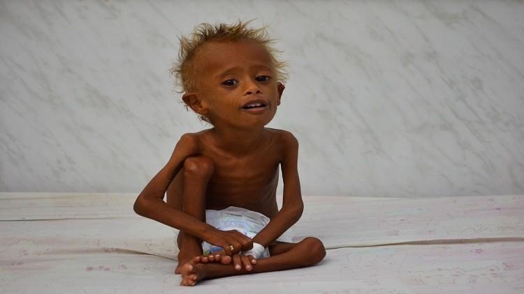 تقرير: اليمن مهدد بالمجاعة والانهيار!