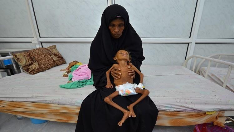 الإندبندنت: بريطانيا متواطئة في تجويع اليمنيين