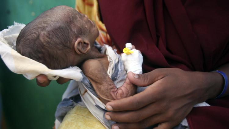 20 مليونا قد يموتون جوعا خلال نصف عام