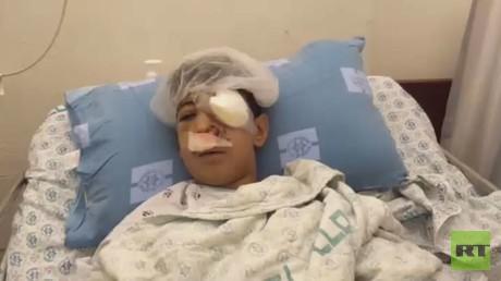 طفل فلسطيني يفقد عينه برصاصة اسرائيلية