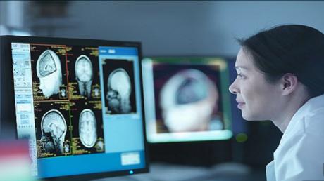 الذكاء الاصطناعي يتفوق على الأطباء في الكشف عن ألزهايمر!