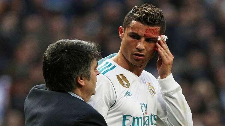 ريال مدريد ينشر فيديو يظهر شدة إصابة رونالدو