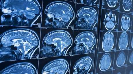 ما علاقة هيكل الدماغ بمعدل الذكاء؟