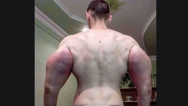 حقن السينثول لتضخيم عضلاته فكاد يفقد ذراعيه