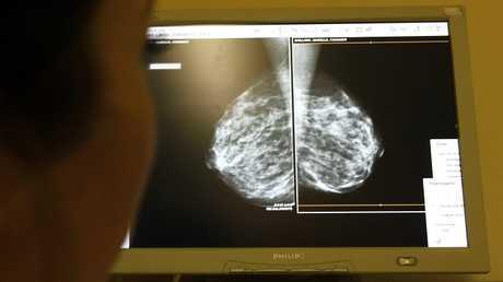 24 طفرة جينية مجهولة تسبب خطر الإصابة بسرطان الثدي