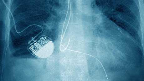 الهاكرز قادرون على قتل مرضى القلب!