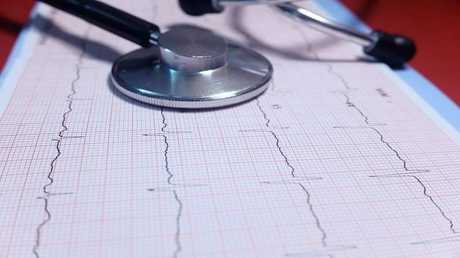 6 علامات غير عادية تكشف عن أمراض القلب قبل الإصابة بالنوبات
