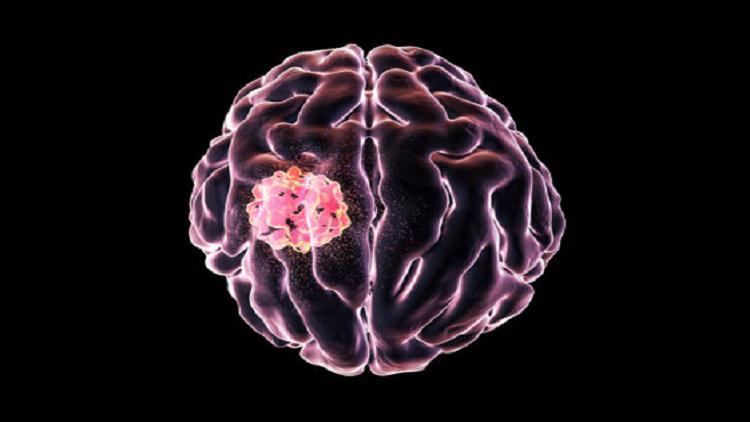 مركب يحارب سرطانا دماغيا قاتلا يصعب علاجه!