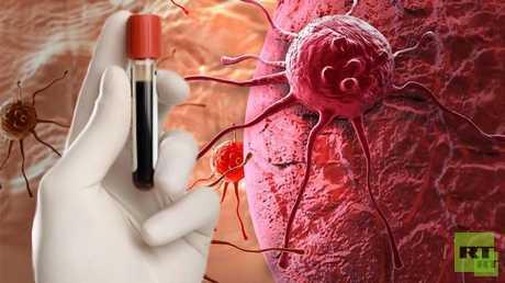 """بدء اختبار مستحضر """"نووي"""" لعلاج سرطان الكبد في روسيا"""