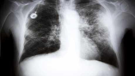 اختبار التنفس للكشف عن السرطان مبكرا وتخفيف المعاناة!