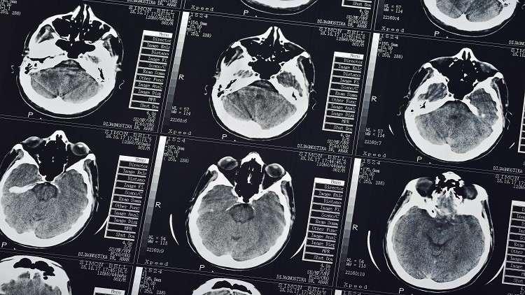 اكتشاف منطقة التشاؤم في الدماغ