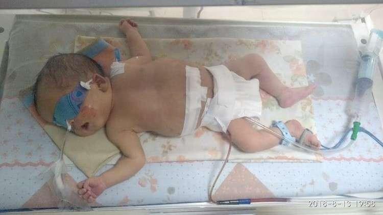 مولودة ابتلعت أختها.. جراحة نادرة في مصر (صور)