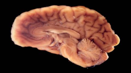 نوع جديد وغامض من الخلايا قد يكشف سبب تميز أدمغتنا!