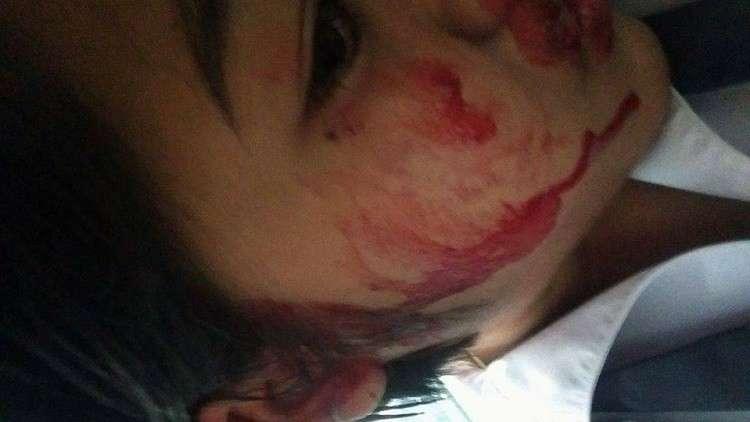 فيتنامية تعاني من حالة نادرة تجعلها تتعرق دما!