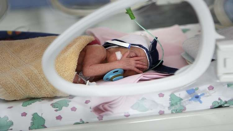 إندونيسيا.. ولادة طفلة بعين واحدة!