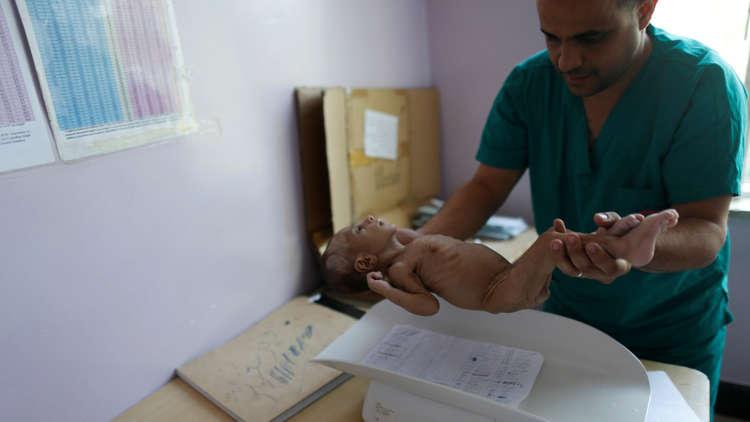 مسؤولة أممية تحذر من مجاعة قد تفتك بـ 12 مليون يمني