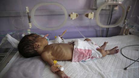 الجوع يهدد حياة خمسة ملايين طفل في اليمن