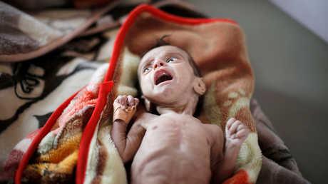 طفل يعاني من سوء التغذية في اليمن