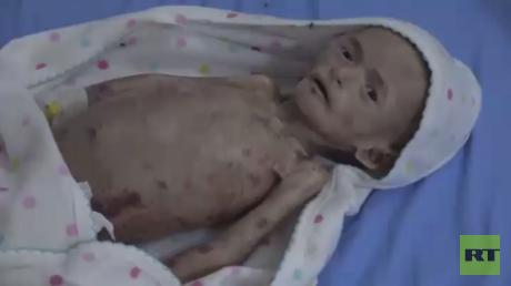 الأمم المتحدة نخسر معركة الجوع في اليمن