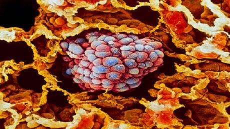 دراسة تكشف كيف ينتشر السرطان بكل سهولة!