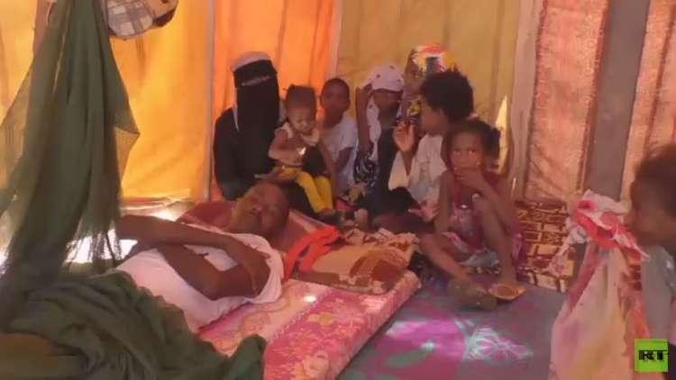 الأمم المتحدة تصف وضع اليمن بالجحيم