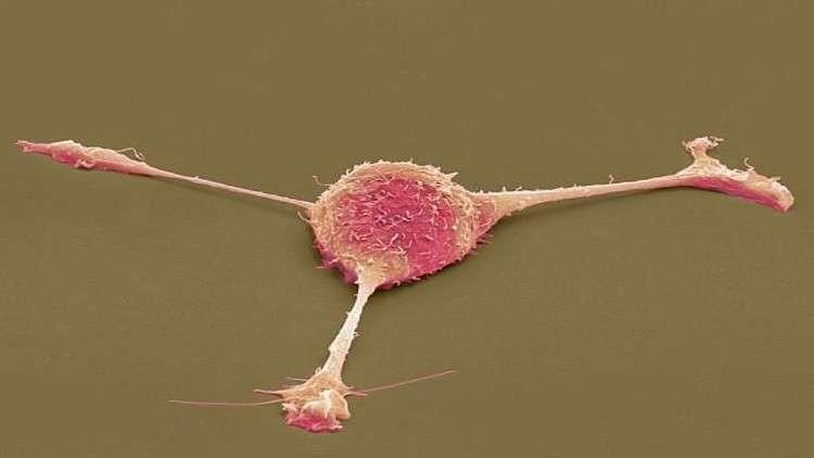 فيروس معدل وراثيا يقتل الخلايا السرطانية ويدمر مخابئها
