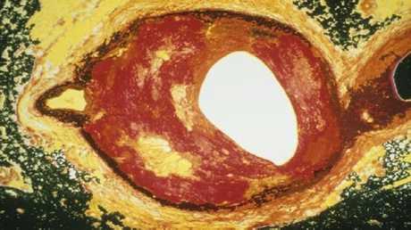 مقطع عرضي في شريان يبين تراكم الكوليسترول على جدرانه