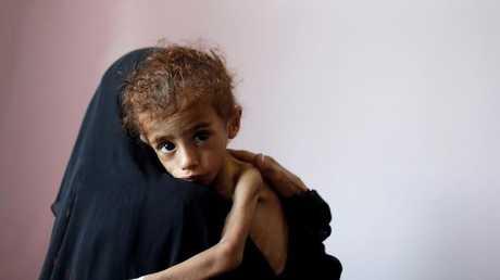 مركز لعلاج سوء التغذية في صنعاء، اليمن 6 أكتوبر 2018