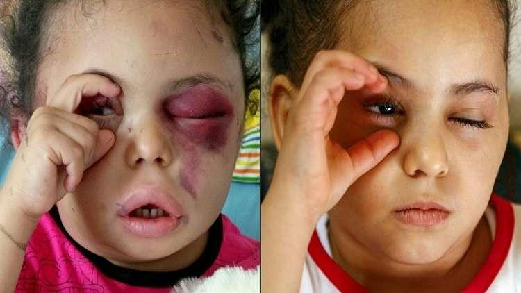 صورة عفوية مؤثرة لطفلة يمنية جعلتها أحد رموز النزاع المدمر في البلد الفقير