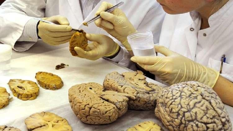 علاقة خطرة بين السمنة وشيخوخة الدماغ المبكرة
