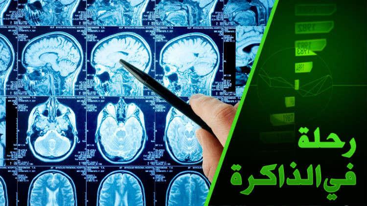 كيف يفسر علم الدماغ ظاهرة الرؤيا عند الإنسان وبما يتميز دماغ المتطرفين دينيا وعقائديا؟