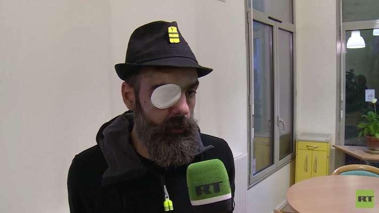 عدسـة RT ترصد حالة قيادي في حركة السترات الصفراء تعرض لإصابة خطيرة بالعين