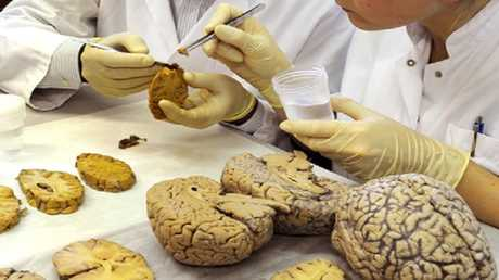 السمنة تسبب شيخوخة الدماغ مبكرا