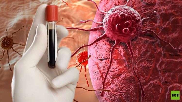 علماء روس يبتكرون دواء يرفع فعالية علاج السرطان
