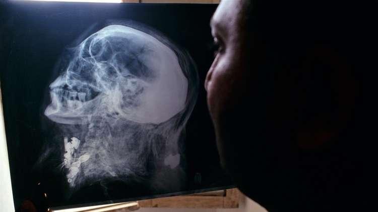 هندي ينجو من الموت بأعجوبة بعد اختراق قضيب حديدي رأسه (صورة)