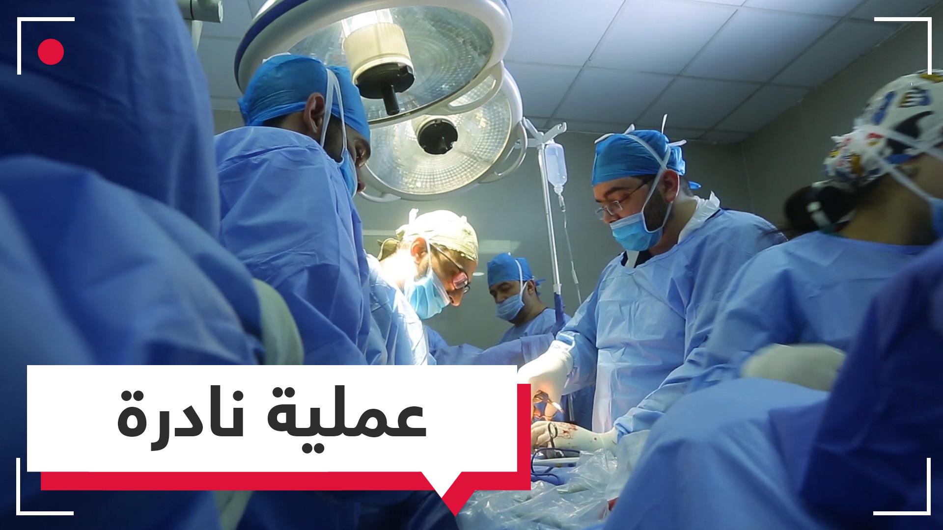 جراحة نادرة لجنين في مصر ..الدكتور وائل البنا يتحدث لـ RT Online عن تفاصيلها