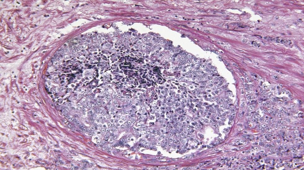 علاج ثوري يطيل حياة مرضى سرطان البروستاتا
