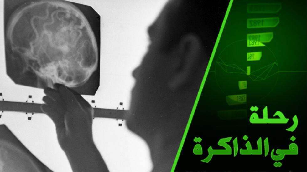 دماغ الرجل ودماغ المرأة. بروفسور في علم الدماغ يكشف عن الاختلاف التركيبي وانعكاساته على السلوك