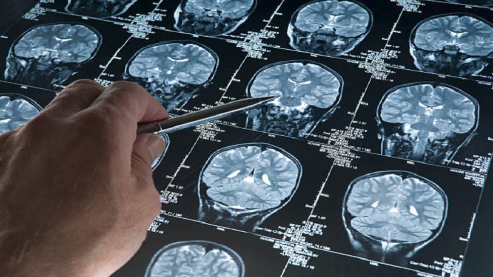 نتيجة بحث الصور عن اكتشاف مذهل يحمل الأمل لعلاج مرض لا شفاء منه