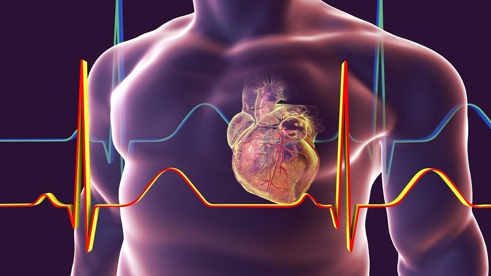النوبة القلبية