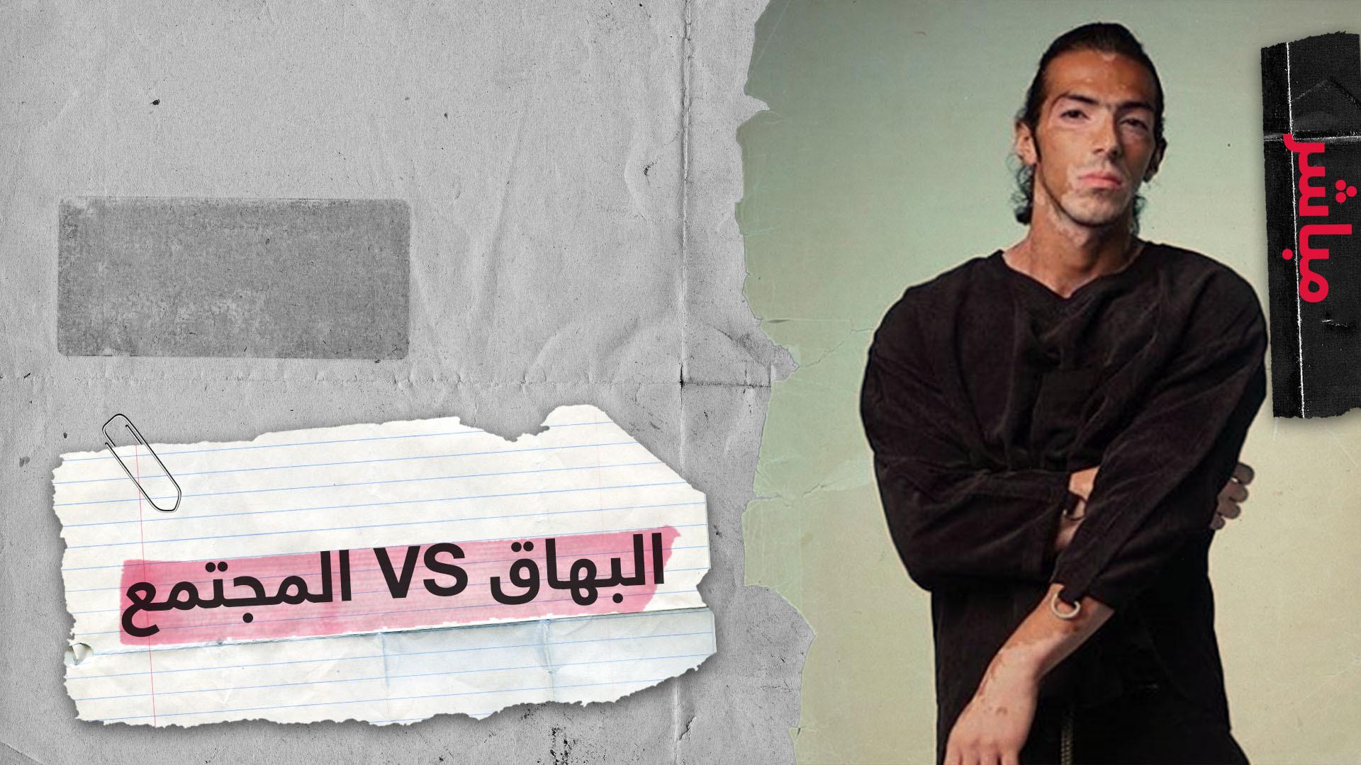 مرضى البهاق والبرص عربيا معاناة مضاعفة بسبب المجتمع