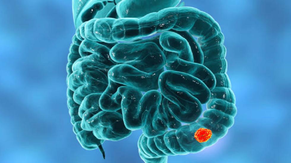 شعور مريب بعد دخول المرحاض قد يدل على احتمال الإصابة بسرطان الأمعاء