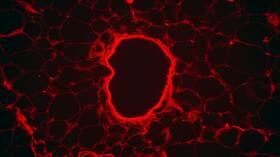 في أول اختبار بشري.. عقار ثوري يحارب سرطان الدم دون آثار جانبية